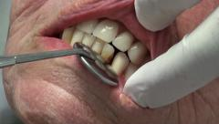 Dentures, odontology and dentistry, dentist examining the teeth of an elderly Stock Footage