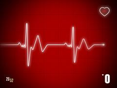 EKG trace - stock illustration