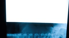 An X-ray spine Stock Footage