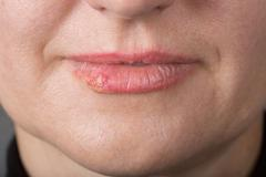 Lip infection with the herpes virus Stock Photos