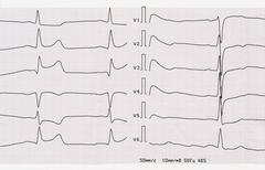 ECG with acute period of macrofocal posterior myocardial infarction - stock photo