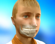 Dental Surgery Animation of Teeth, Braces concept Stock Footage