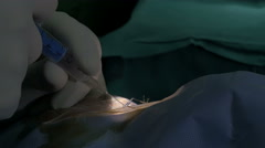 Cataract eye surgery close up, tilt up, ophthalmologist surgeon and nurse. Stock Footage