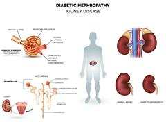 Diabetic Nephropathy, kidney disease - stock illustration