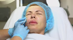 Stock Video Footage of Cosmetic treatment with injection in a clinic