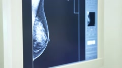 Doctor explaining a mammography - stock footage