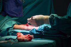 Surgery for Coronary Artery Bypass Grafting: CABG - stock photo