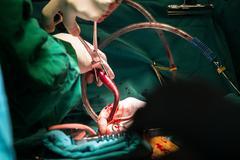 Coronary artery bypass grafting Stock Photos