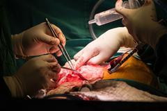 coronary artery bypass grafting - stock photo