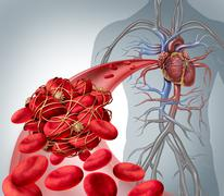 Blood Clot Risk - stock illustration