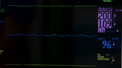 Screen of multiparameter ambulance patient monitor in Russian closeup Stock Footage