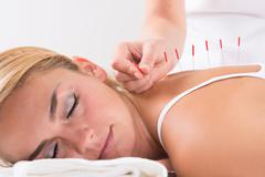 Closeup of hand performing acupuncture therapy on customer's back at salon Stock Photos