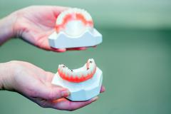Hand holding a set of dentures - stock photo
