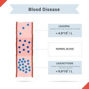 Icon blood disease leucocytosis and leukopenia - stock illustration