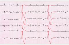 Tape ECG with ventricular premature beats (quadrigemini) - stock photo