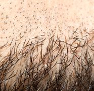 hair on a man's beard. close - stock photo