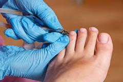 Chiropody Spa salon. Removing cuticle. Stock Photos