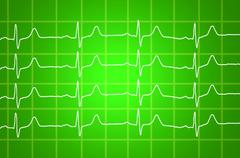heart beats electrocardiogram over green background - stock illustration