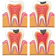 Tooth decay diagram in details Stock Illustration