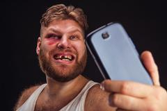 Man with bruise takes selfie Stock Photos