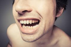 Young man with plaque on his teeth Stock Photos
