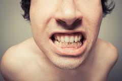 Young man with plaque on his teeth - stock photo