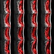 MRI Of Lumbar And Thoracic Vertebral Spine Showing Spinal Disc Herniation Stock Photos