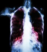 Pulmonary Tuberculosis  ( film chest x-ray :  interstitial infiltrate both lu - stock photo