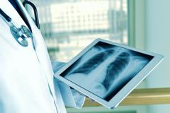 doctor observing a chest radiograph in a tablet - stock photo