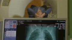 Radiology. CT and MRI diagnostic. Monitor close up. Patient on scanner. Stock Footage