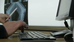 Radiologist writing results to computer and examining x-ray of patient, close up Stock Footage
