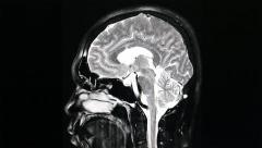MRI brain scan on black background Stock Footage