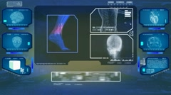 Foot Analysis  - High Tech Scan - Blue 01 Stock Footage