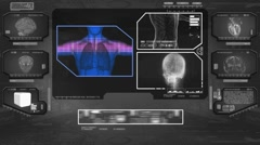 Lungs Analysis  - High Tech Scan - Black 01 - stock footage