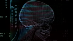Closeup of a CT scan Stock Footage