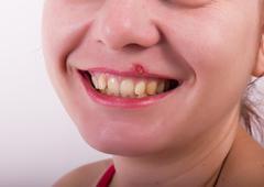 Girl lip herpes diseased Stock Photos