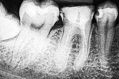 Stock Photo of Tooth Decay On X-Ray