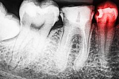 Stock Photo of Pain Of Tooth Decay On X-Ray