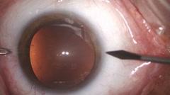Cataract removal surgery closeup Stock Footage