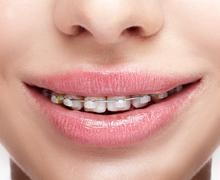 Closeup of woman open smiling mouth with  brackets - stock photo