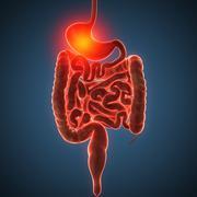Disease illustration of human stomach Stock Illustration