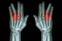 Fracture shaft of proximal phalange of ring finger ( film x-ray both hand AP Stock Photos