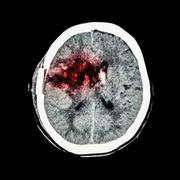 CT scan of brain : show old right basal ganglia hemorrhage with brain edema ( Stock Photos