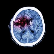 CT scan of brain : show old right basal ganglia hemorrhage with brain edema ( - stock photo