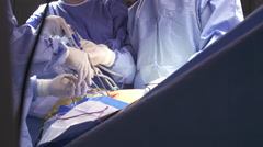 Surgeons working during laparoscopic lung surgery Stock Footage
