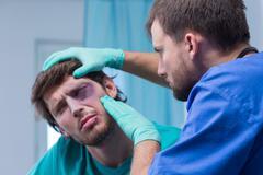 Bruise around the eye Stock Photos