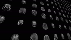 Magnetic Resonance Imaging - stock footage
