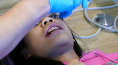 Orthodontist Trims New Bottom Wire On Teenage Girl - stock footage