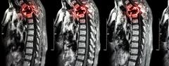 Spine metastasis ( cancer spread to thoracic spine ) ( MRI of cervical and th Stock Photos