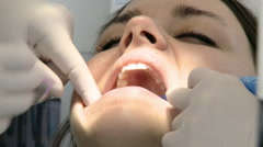 Healthcare teeth problem woman at dentist Stock Footage